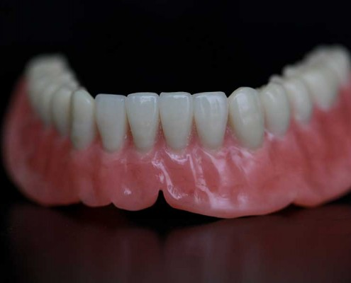 Denture wax up