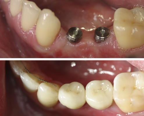 Patient had two missing pre-molars. Two dental implants were placed in the open spaces. Six months later, two zirconia abutments were installed over the implants and topped with two all-ceramic e.max crowns made in our in-house laboratory.