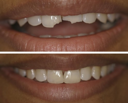 Patient with two broken central incisors after a car accident. Direct tooth-colored fillings repaired the two broken teeth on the exact same day.