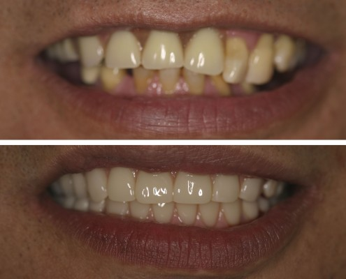 Patient had severe advanced periodontal disease in the entire mouth. Remaining natural teeth were extracted. Upper and lower complete overdentures were custom-made for this patient in our on-site laboratory. Additionally, eight dental implants were installed to secure these overdenture attachments in the mouth.