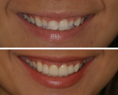 Midtown Manhattan Smile Makeover
