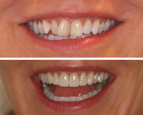Patient with slight crowding of front teeth searched for alternatives to orthodontic treatment. The patient's eight front teeth were minimally-reduced and covered with paper-thin porcelain laminate veneers produced in our in-house laboratory.