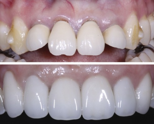 Although the patient had recently completed Invisalign treatment, her four front teeth with existing crowns were still too far forward in her mouth. The two front teeth were extracted and replaced with implants, requiring bone grafting (adding necessary bone). Six months later, all-ceramic crowns were installed on the four front teeth, and porcelain laminate veneers were placed on the canines.