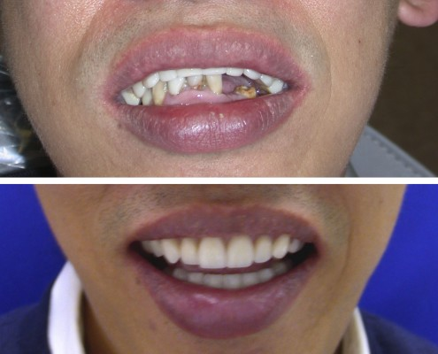 Patient wore a poorly-constructed denture and suffered from periodontal disease and a collapsed bite. Full mouth reconstruction was performed by installing an implant overdenture on the top and dental implants, crowns and veneers on the bottom.