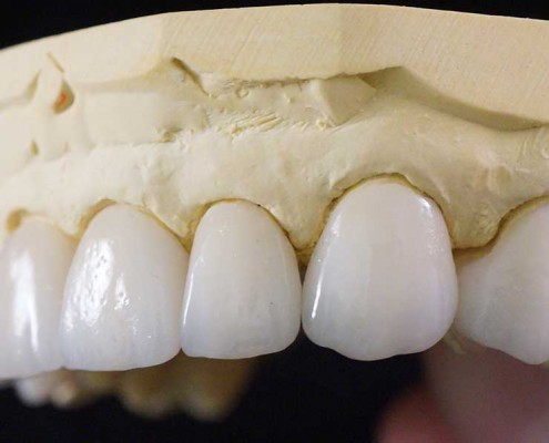 IPS e.max porcelain crowns and veneers