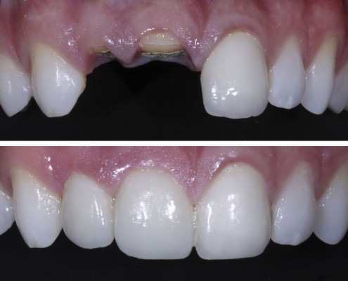 Patient lost two front teeth in a rowing accident. He was given root canal, a post and core and all-ceramic e.max crowns that restored his smile with natural results.