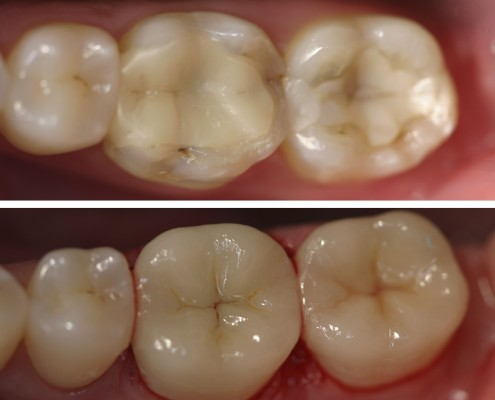 Patient had two molars with old, broken, composite fillings in need of repair. The fillings were replaced with ceramic inlays which are longer lasting, much more aesthetic and offer better support for the tooth.