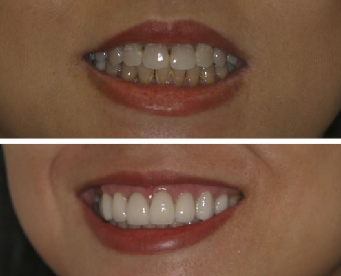 Patient had severely stained teeth. They were covered with twelve porcelain laminate veneers that gave her a stunning white smile.