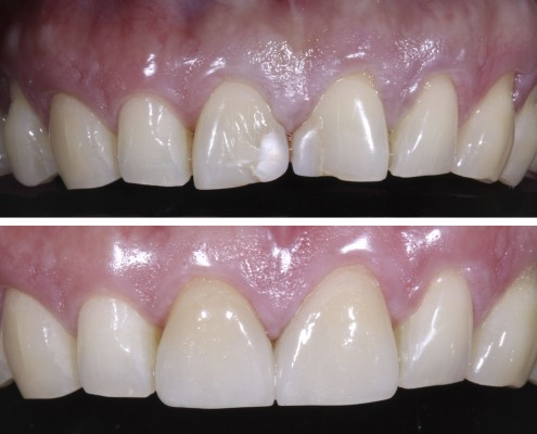 Patient had old composite fillings on the two front teeth that had been chipped by eating hard candy. The old fillings were replaced the same day by BPA-free nano-filled composite fillings, matched to the color of the adjacent tooth.