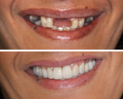 Patient was missing several teeth and did not want to wear a removable partial denture. Full mouth reconstruction was performed using eight dental implants and porcelain crowns and veneers hand-made in our in-house laboratory.