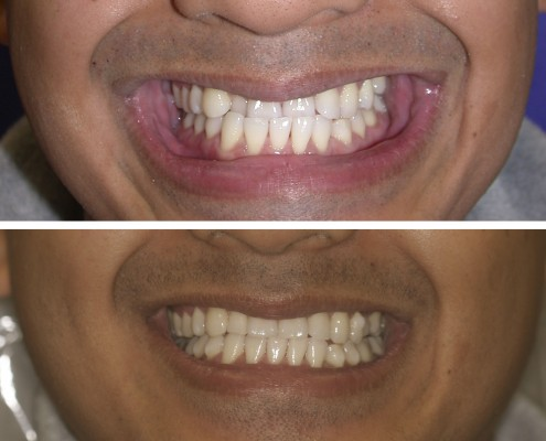 Before Invisalign, the patient had an anterior crossbite. After 14 months of Invisalign treatment, the patient's anterior crossbite was corrected leaving the teeth in better alignment.