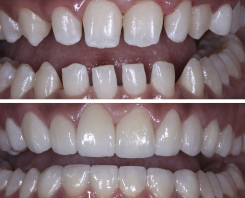 Patient was born with congenitally smaller teeth, and gaps between them were readily apparent. Orthodontic treatment, such as traditional braces, was ineffective. Original teeth were minimally reduced and prepped. Sixteen porcelain laminate veneers were placed, closing the gaps between the teeth and resulting in an even smile.