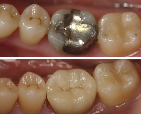 Patient had a large amalgam filling that was starting to break down. The old filling was replaced the same day with an e.max porcelain onlay matched to the shade of the original tooth. The onlay was made in our in-house laboratory.